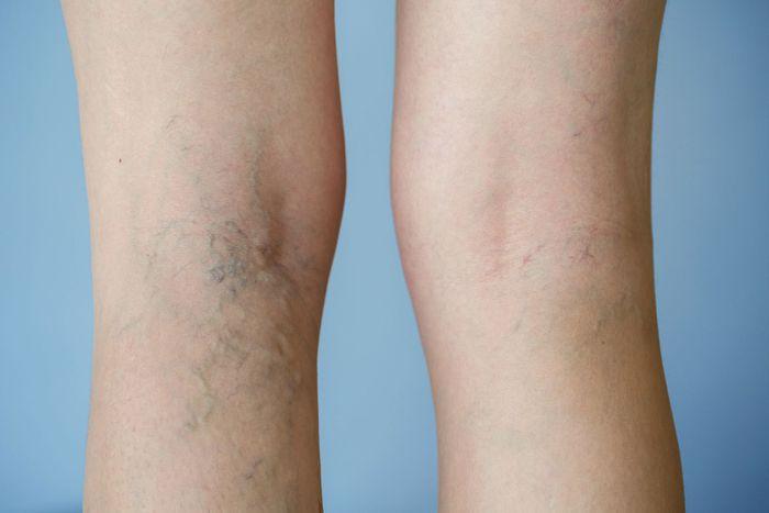 Suy giãn tĩnh mạch chân - Active Legs 1